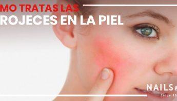 tratamientos rojeces en la piel